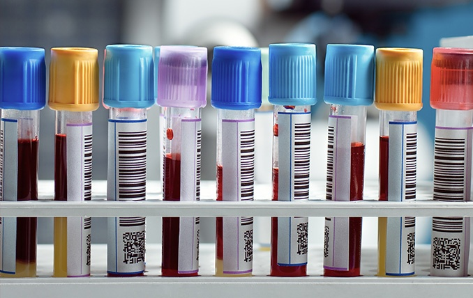 Blood sample of many people